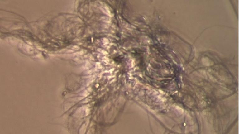 Mikroskopische Aufnahme der Nanozellulose